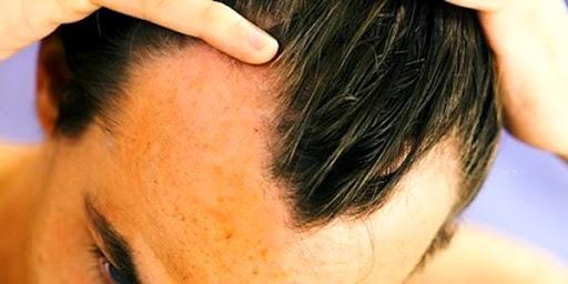 Tribulus Terrestris causa queda de cabelo